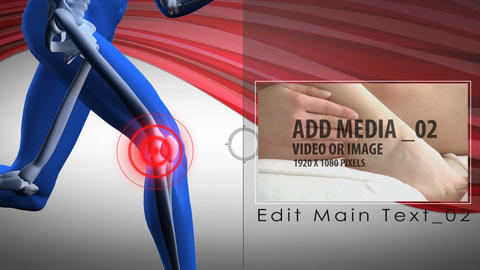 Pain zone: Knee After Effects Template