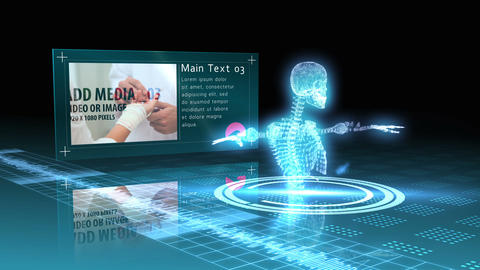 Medical Scan Display After Effects Template