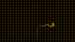 Cardiogram cardiograph oscilloscope screen with gr Animation