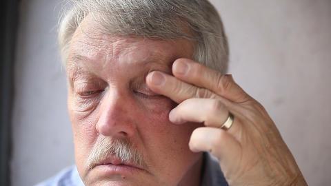 man checks his bloodshot eyes Footage