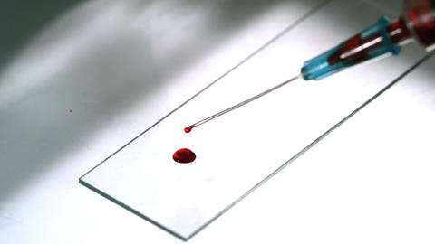 Blood dropping from syringe onto slide Footage