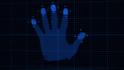 Animation of hand undergoing Xray procedures Animation