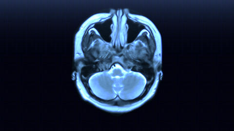 MRI scan Animation