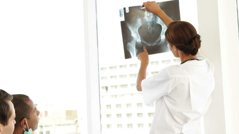 Medical team talking about xray during a meeting Stock Video Footage