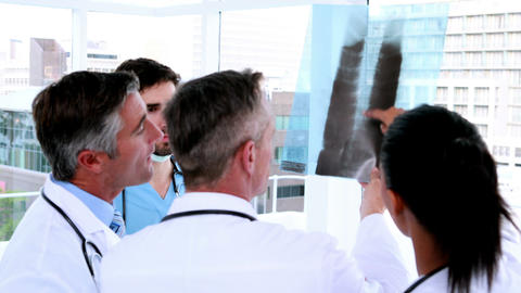 Medical team looking at x-ray together Footage