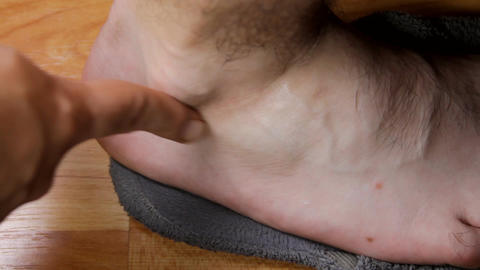 Man Applying Cream To His Ankle, Ankle Pain, Treat Live Action