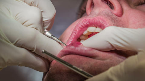 Dentist starts to drill on dental patient's upper  Footage