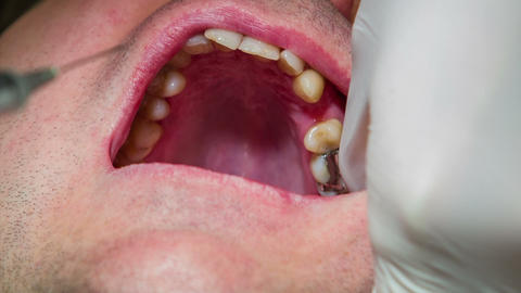 Dentist injects anesthetic into dental patient's g Footage