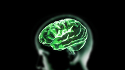 green head brain Stock Video Footage