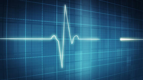 EKG electrocardiogram pulse trace on blue Animation