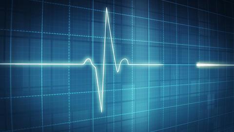 EKG electrocardiogram pulse trace on blue Animation