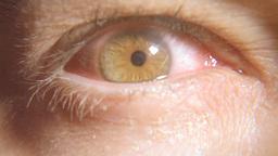 Eye red sick macro 7 Footage