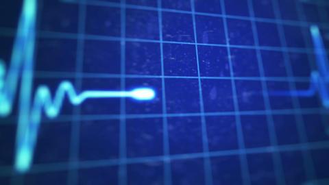 Electrocardiogram Animation