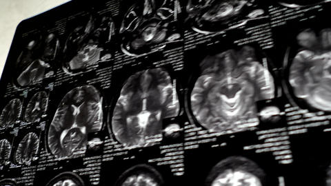 X Ray Picture Of Magnetic Resonance Imaging In Mot stock footage