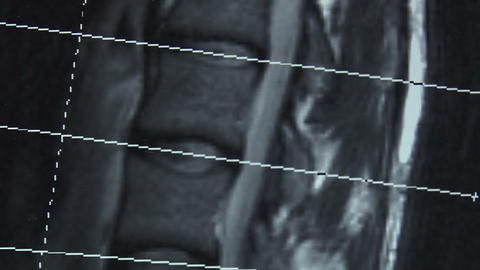 Tomography, Imaging Of The Spine. Picture stock footage