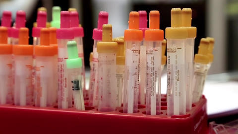 Blood test in medical laboratory Footage