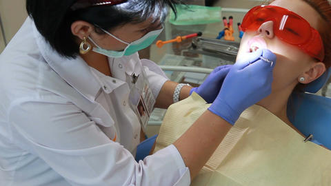 Stomatology - oral examination and laser cleaning of tartar Footage