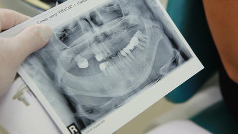 picture of the jaw in the hands of the doctor of periodontal Footage