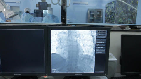 Angiography: long shot of the operational and to three monitors(on dolly) Footage
