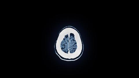 Human Brain MRI Scan stock footage