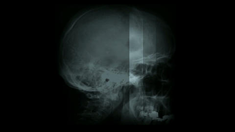 human head zoom in brain with neurones... Stock Video Footage
