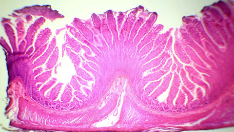 Сross-section of the small intestine under the mi Footage