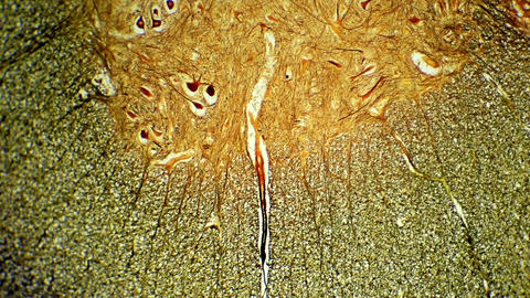 Cross section of the spinal cord under microscopic Footage