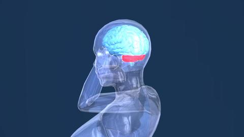 Hologram Female Headaches Medical Footage