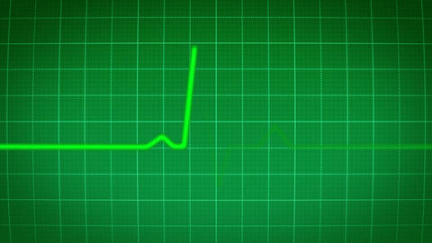 Heartmonitor HD Sound stock footage