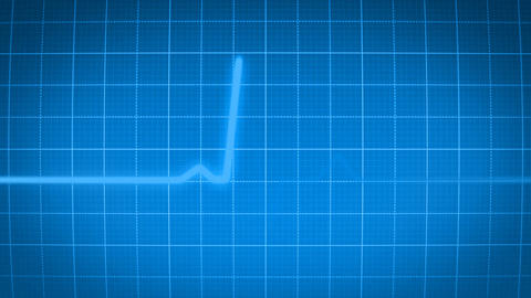 Heartmonitor Blue stock footage