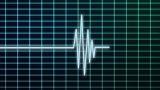 EKG Scanner stock footage
