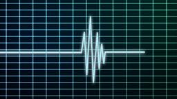 EKG scanner Animation