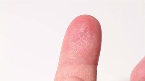 Preparing Finger for Blood Glucose Test 01 bleeding Stock Video Footage