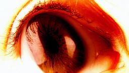 Eye nightmare bloody trouble Footage