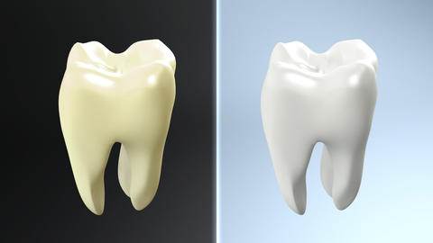 process of yellow tooth to white Stock Video Footage