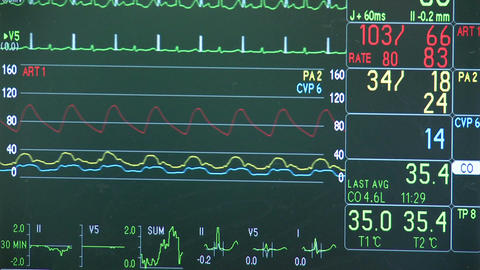 Vital signs monitor during surgery Footage