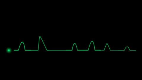 ECG Cardiovascular Stock Video Footage