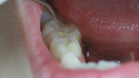 HD footage of Dental Checkup, Dentist cleaning teeth and checking with plaque re Live Action
