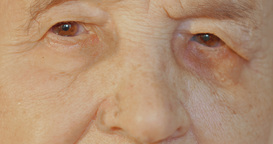 Elderly womans face with tired expression Footage