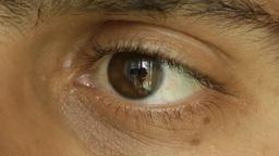 One eye Footage