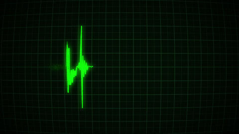 Heartbeat on the green monitor Animation