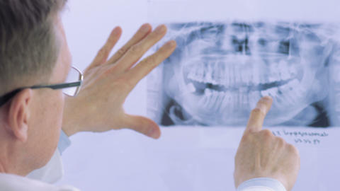 Closeup of dentist looking at dental x-ray plate Live Action