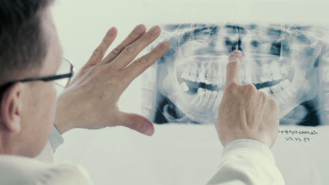 Male doctor analyzing x-ray in clinic Footage
