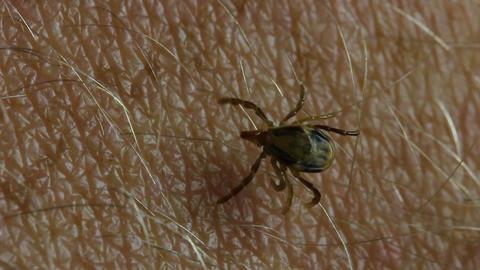 Paralysis Tick, Dog Tick Parasite - Parasitiformes stock footage