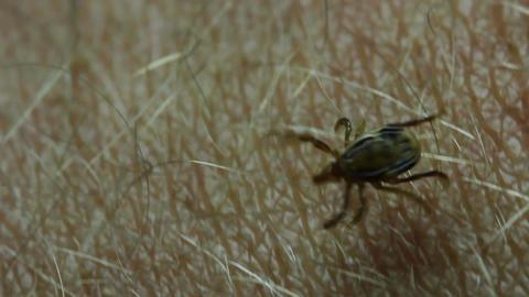 Paralysis tick, dog tick parasite - Parasitiformes Footage